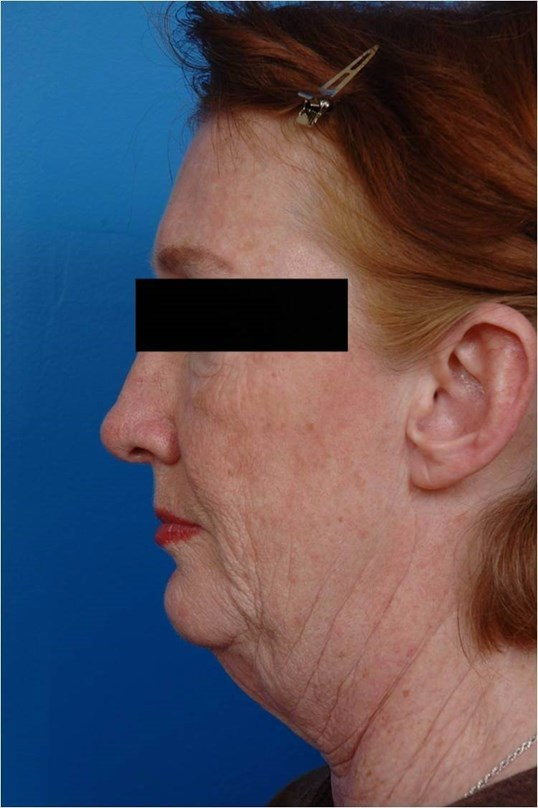 Facelift/Necklift Profile View Before