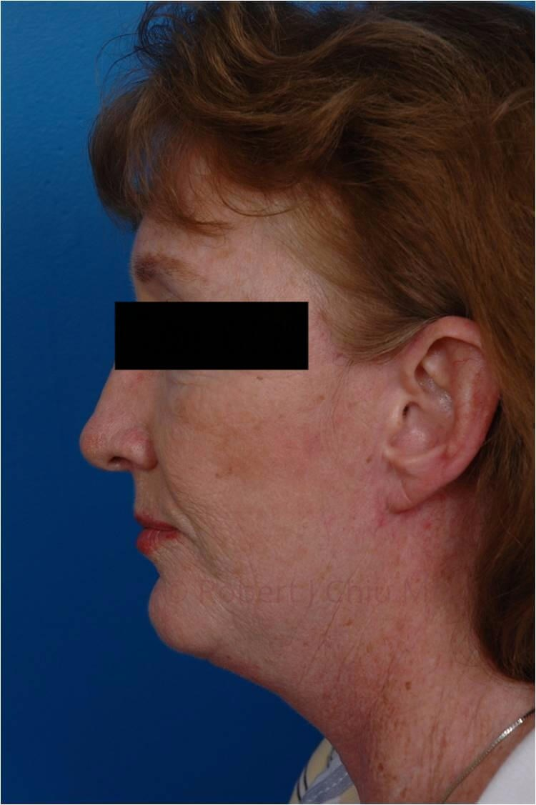 Facelift/Necklift Profile View After