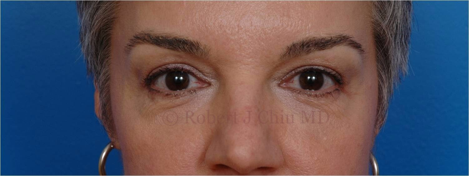 Front View Blepharoplasty After
