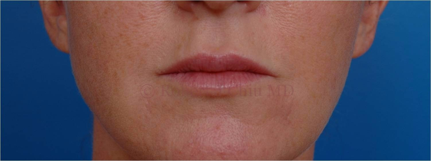Front View Lip Augmentation After