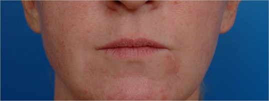Front View Lip Augmentation Before