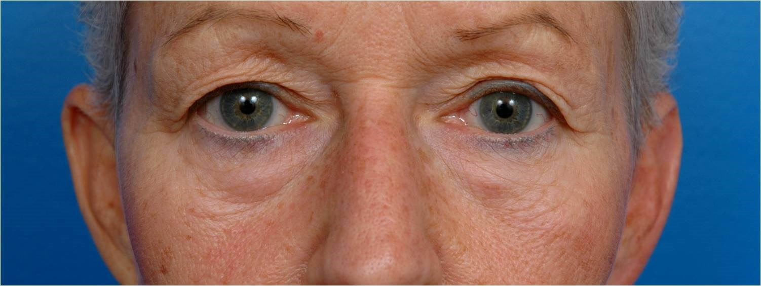 Front View Blepharoplasty Before