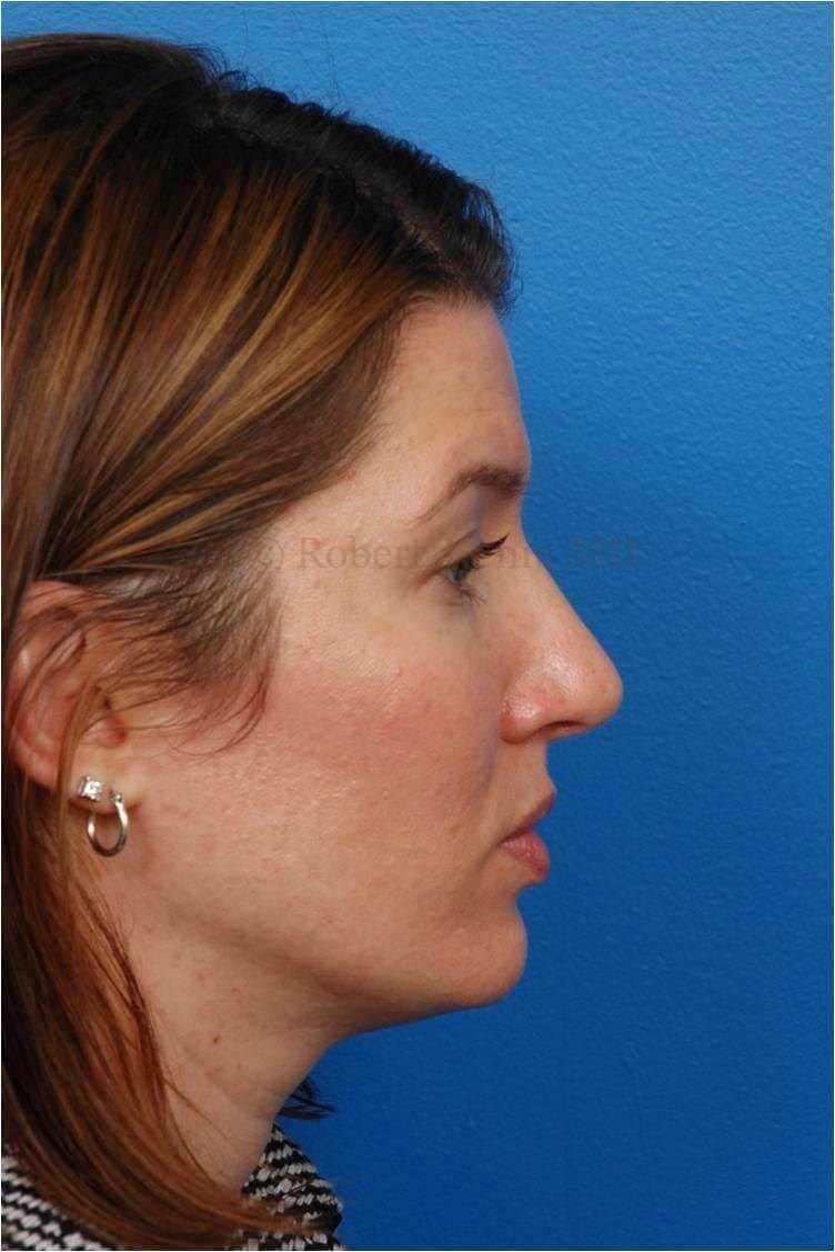 Right Profile View Rhinoplasty After