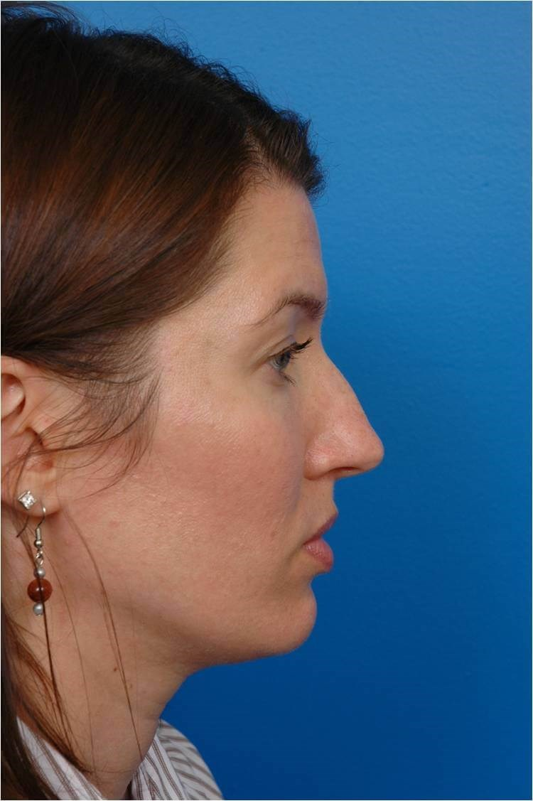 Right Profile View Rhinoplasty Before