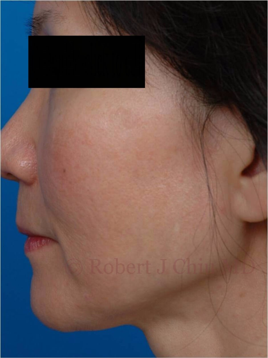 Profile View Fraxel Laser Tx After