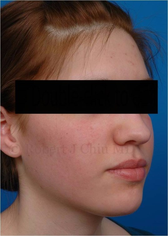 Right 3/4 View Fraxel Laser Tx After