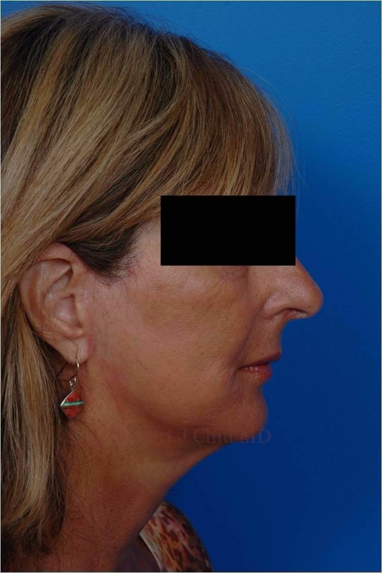 Right Profile View Facelift After